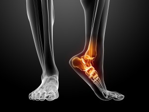 dreamstime_m_18584020 x ray ankle pain